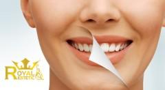 Zľava 89%: Zažiarte úsmevom s až o 6 odtieňov belšími zubami vďaka profesionálnemu bieleniu v salóne Royal estetic len za 21,90 €. Revolučná metóda bez použitia peroxidu!